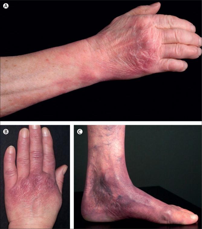 Acrodermatitis: MedlinePlus Medical Encyclopedia