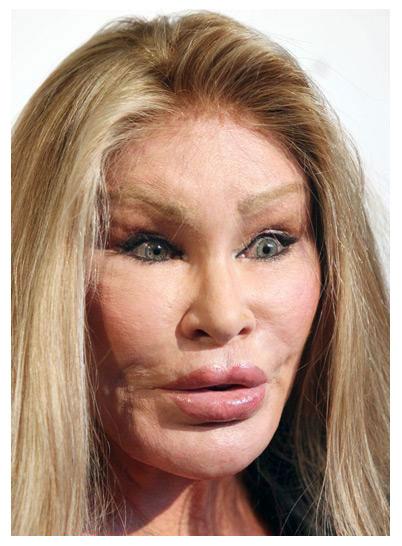 celebrityplasticsurgerygonewrong.jpg